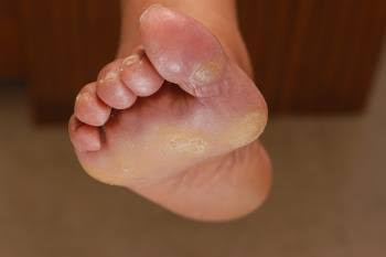 What You Need To Know About Foot Corns