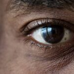 Eye Floaters and Eye Flashes-