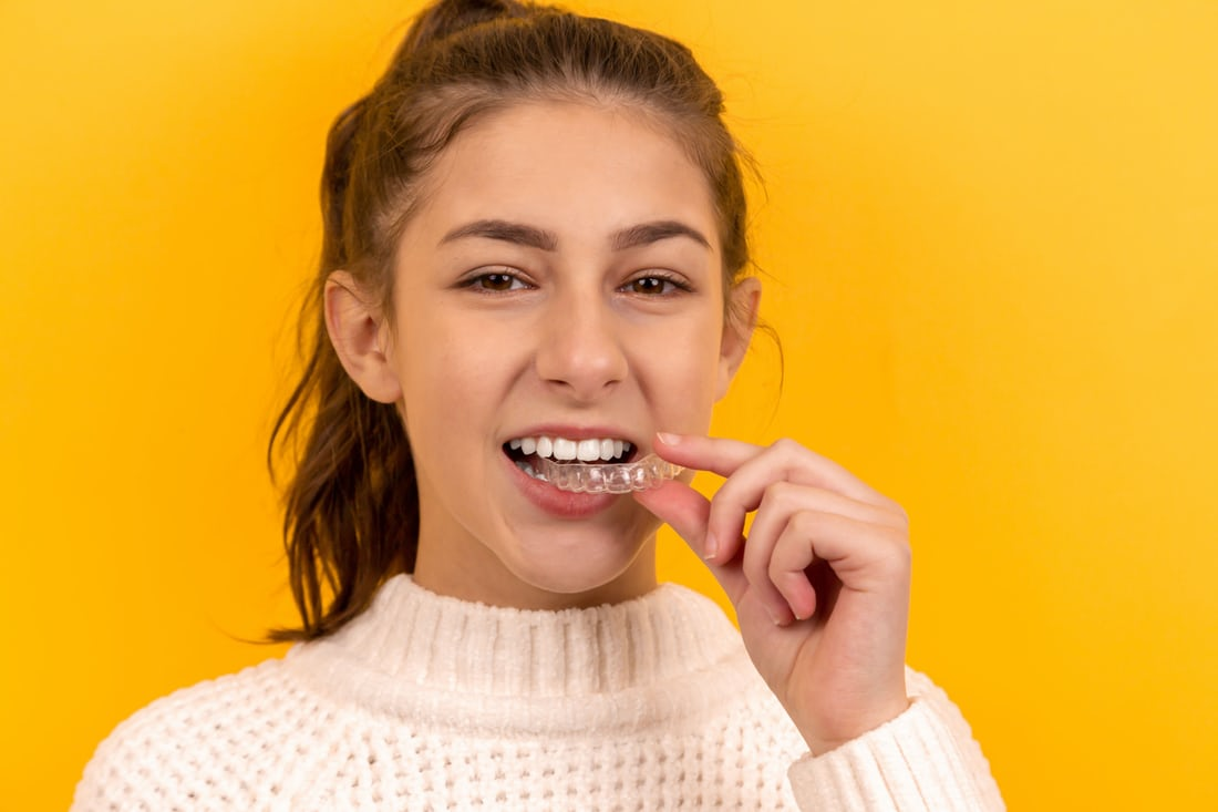 Taking Care of Your Dental Braces-