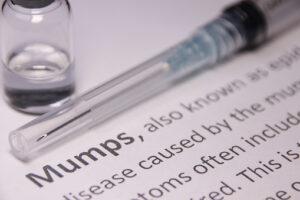 Are You Mumpy?